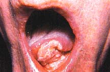 Effects of tobacco on oral tissue   graphic, shocking, pictures